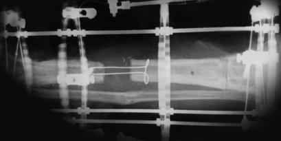 X-ray of an external fixator with a cable-pulley system for limb reconstruction.